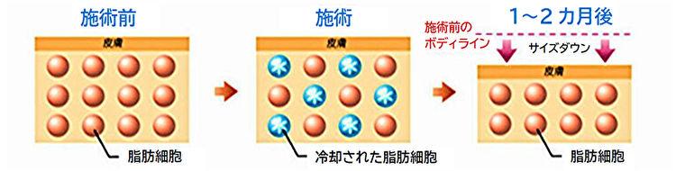 施術後脂肪細胞イメージ